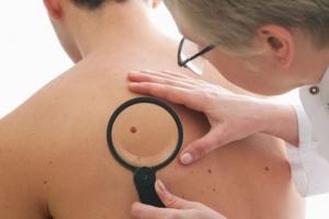 В Каменске-Уральском и районе отмечено снижение количества заболевших раком