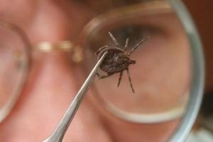 Тяжелый случай клещевого энцефалита выявлен на территории Каменска-Уральского